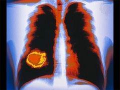 Minden, amit tudni kell a tüdőrákról