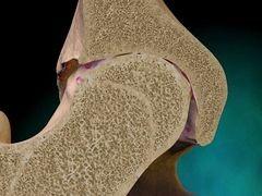 Csípőízületi arthrosis