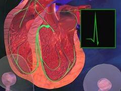 Terheléses vizsgálat / EKG