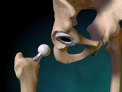 Csípőprotézis