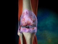 Csontízületi gyulladás