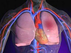 Tüdőembólia