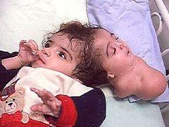 Szörnyszülöttek, fejlődési rendellenességek