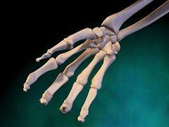 A kéz krónikus reumája